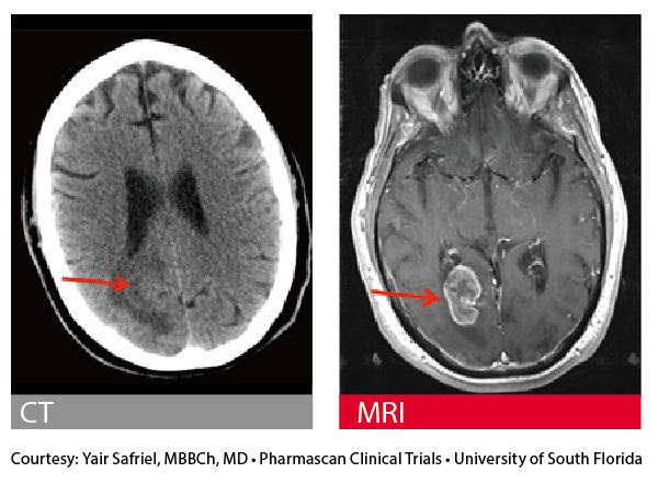 脳卒中が疑われる条件付きMRI 対応ペースメーカ患者さんの頭部画像。