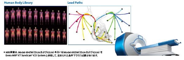 業界屈指の230万通りを超えるシナリオで検証したMRI環境下での安全性と信頼性